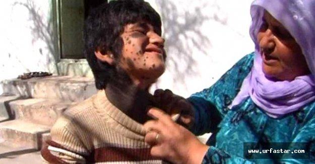 10 Yaşındaki Suriyeli kızın büyük dramı...