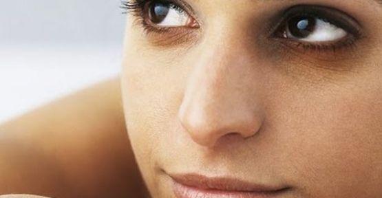Göz altı morlukları nasıl giderilir?