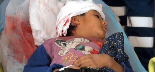 Suriyeli çocuğa otomobil çarptı