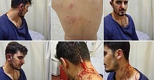 Urfa'da öğretmene alçak saldırı!