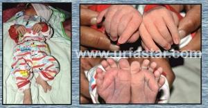 Urfa'da yeni doğan bebek şaşırttı